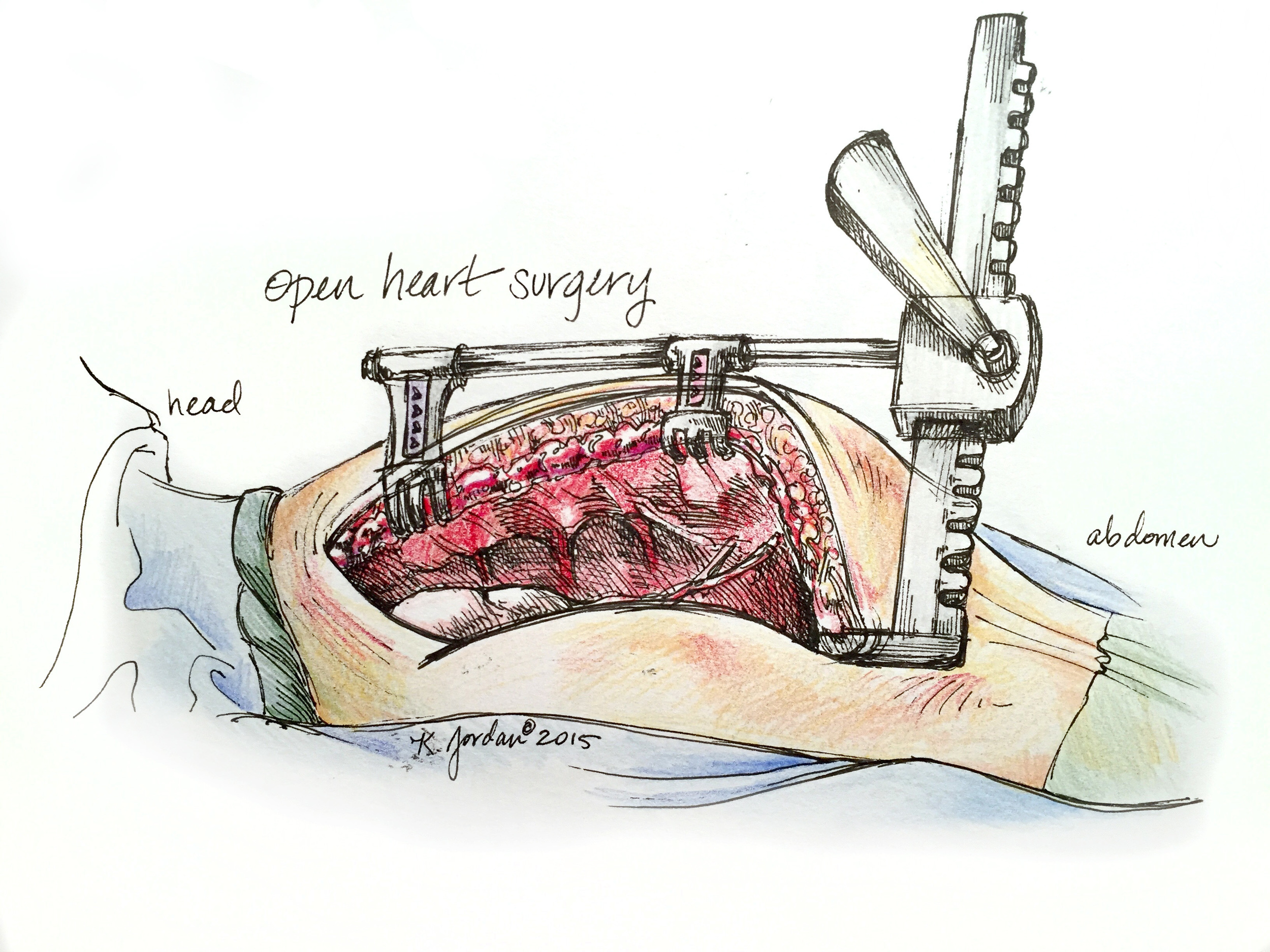 Surgical Sketch: Open Heart