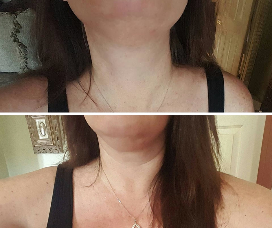 Post Kybella Treatment (24 hours) swelling already starting to go down, redness all but gone.