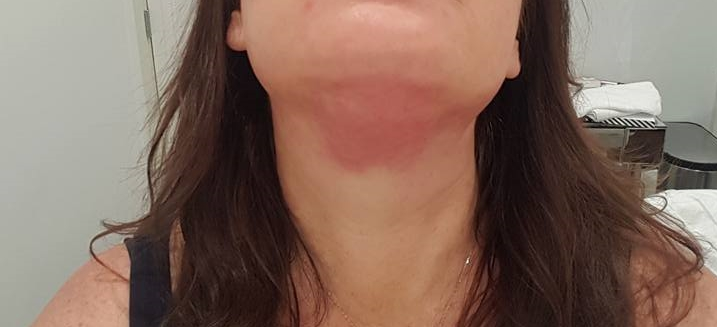 Immediately after completion of my Kybella injections.