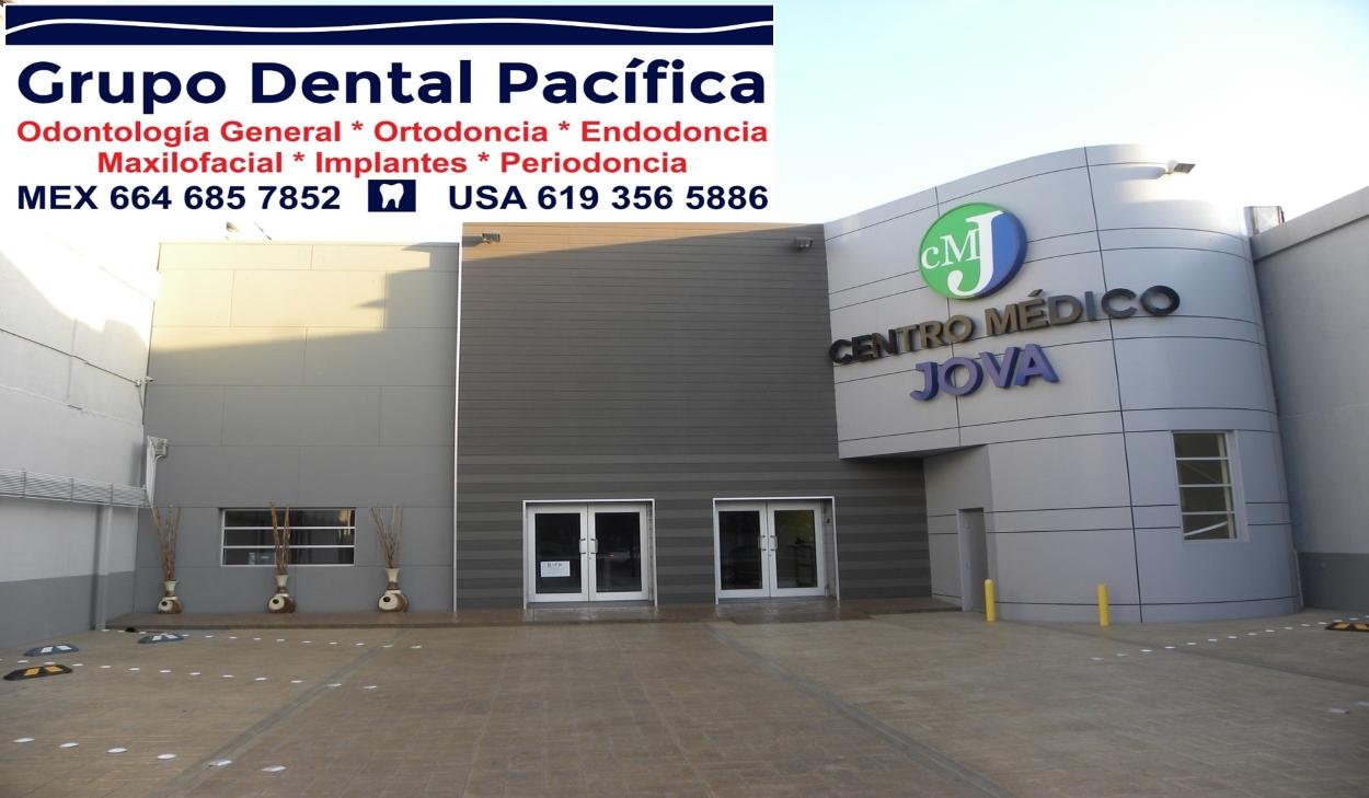I love TJ Dentista en Tijuana grupodentalpacifica.com