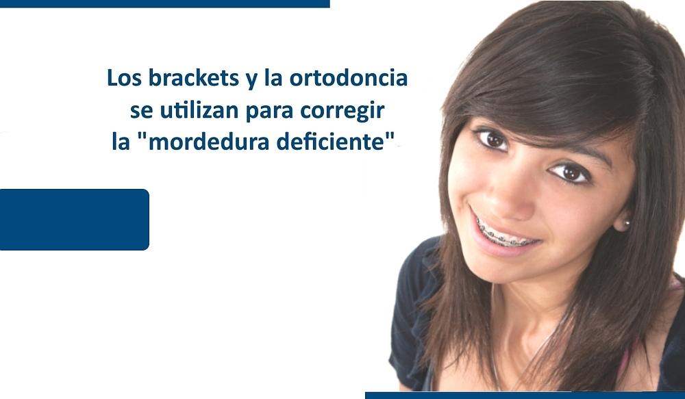 www.GrupoDentalPacifica.com Brackets | Braces | Ortodoncia