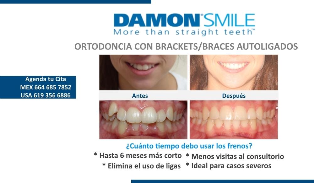 Brackets+Dentista+en+Tijuana+Grupo+Dental+Pacifica.jpg