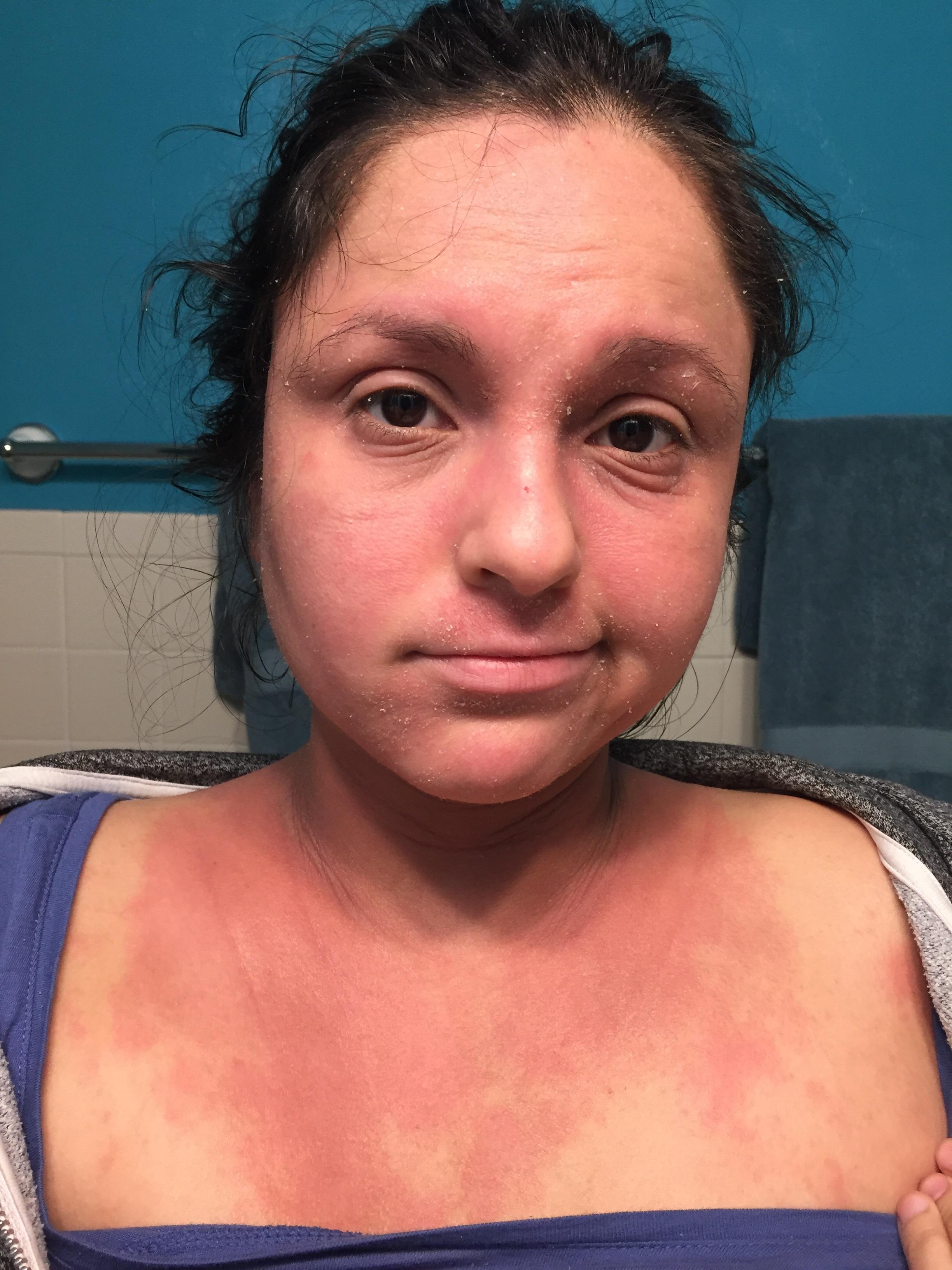 eczema_flair.jpg