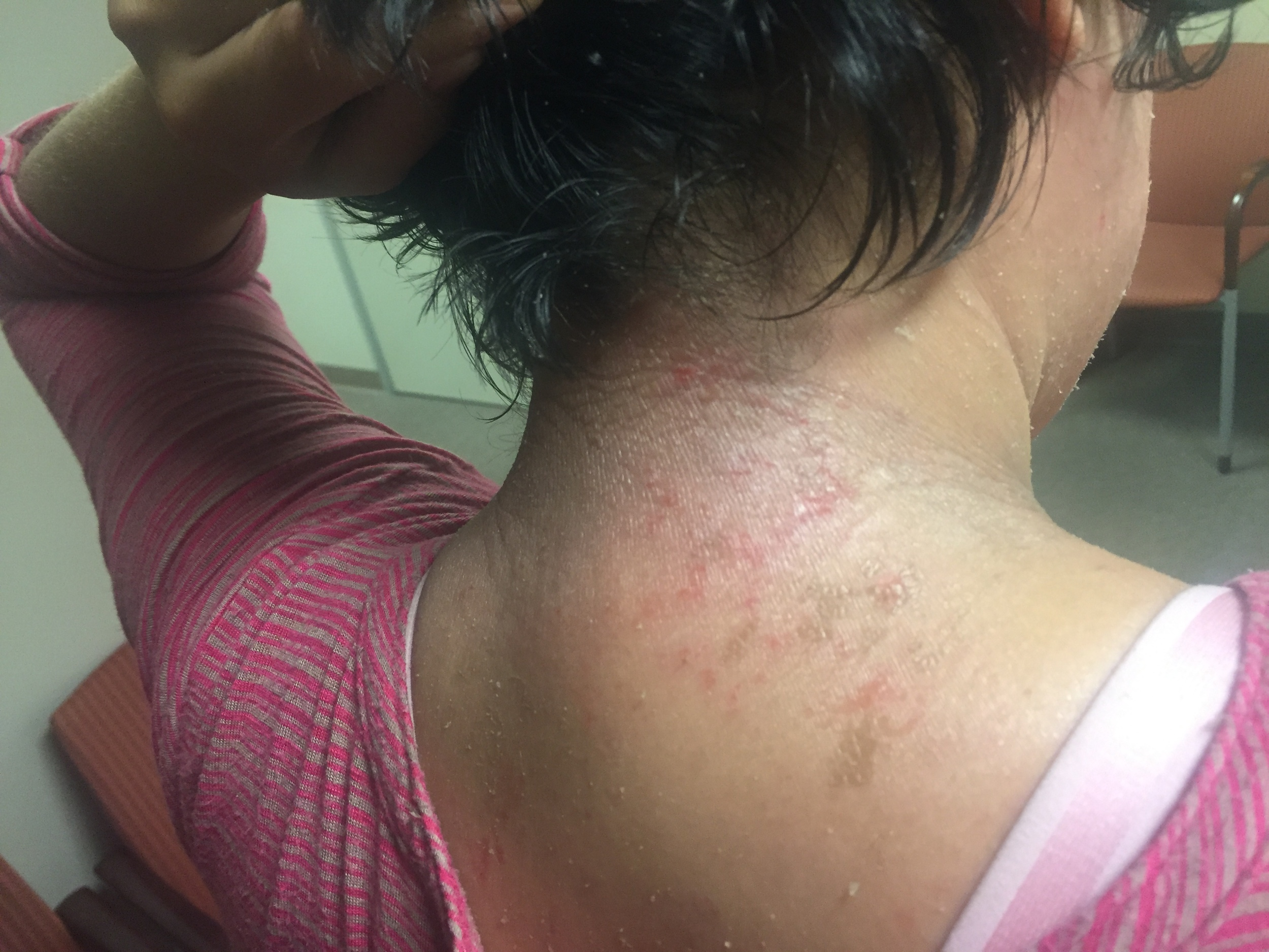 Eczema raw skin