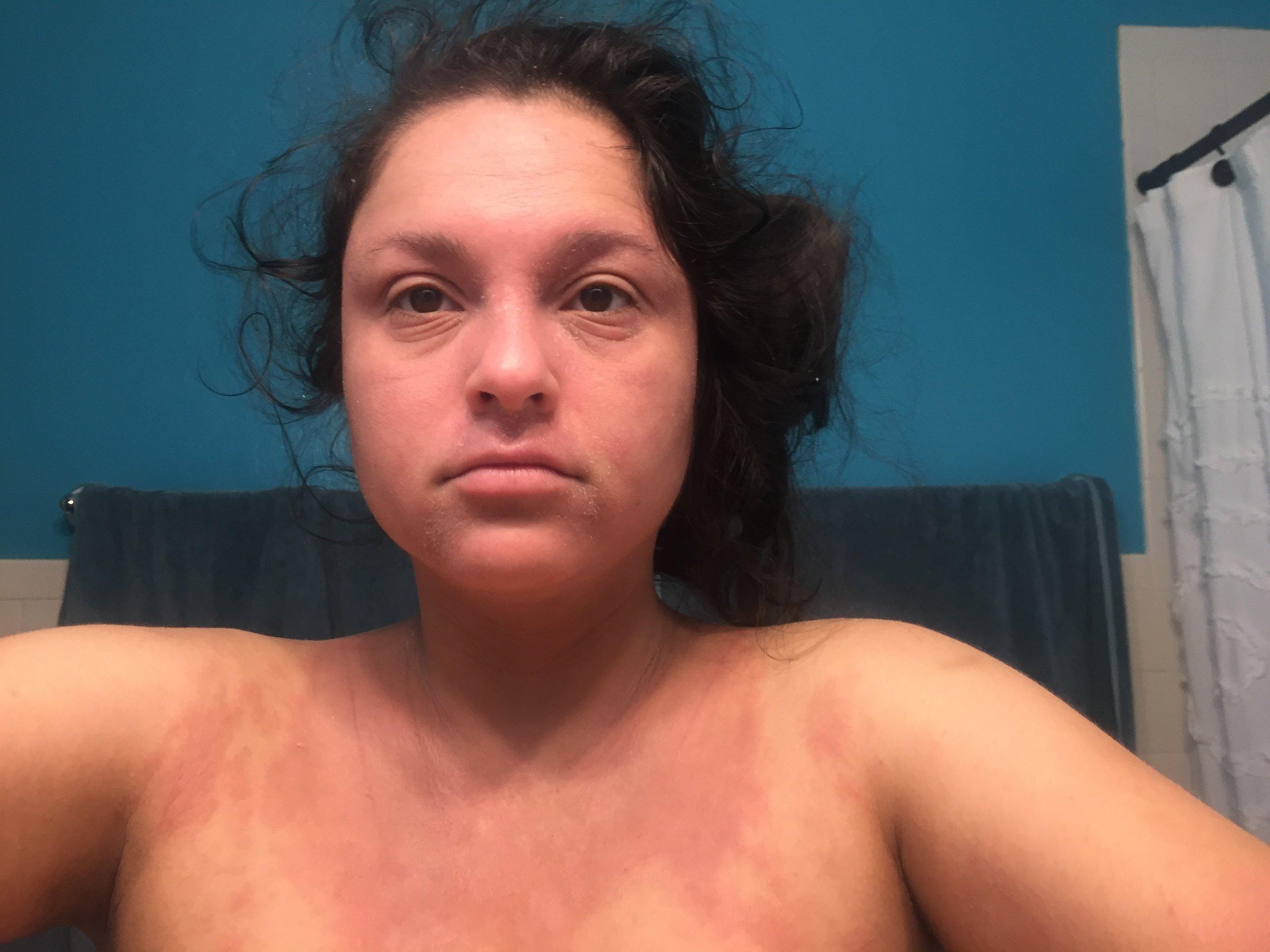 pregnancy_with_eczema.jpg