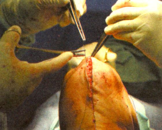 knee surgery 3w.jpg