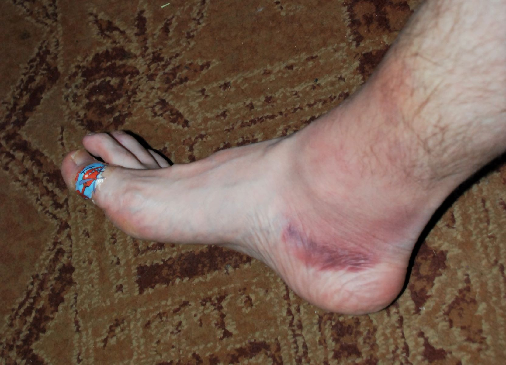 A blocked shot (or two) and a skate that's a touch too narrow make for one sore foot.