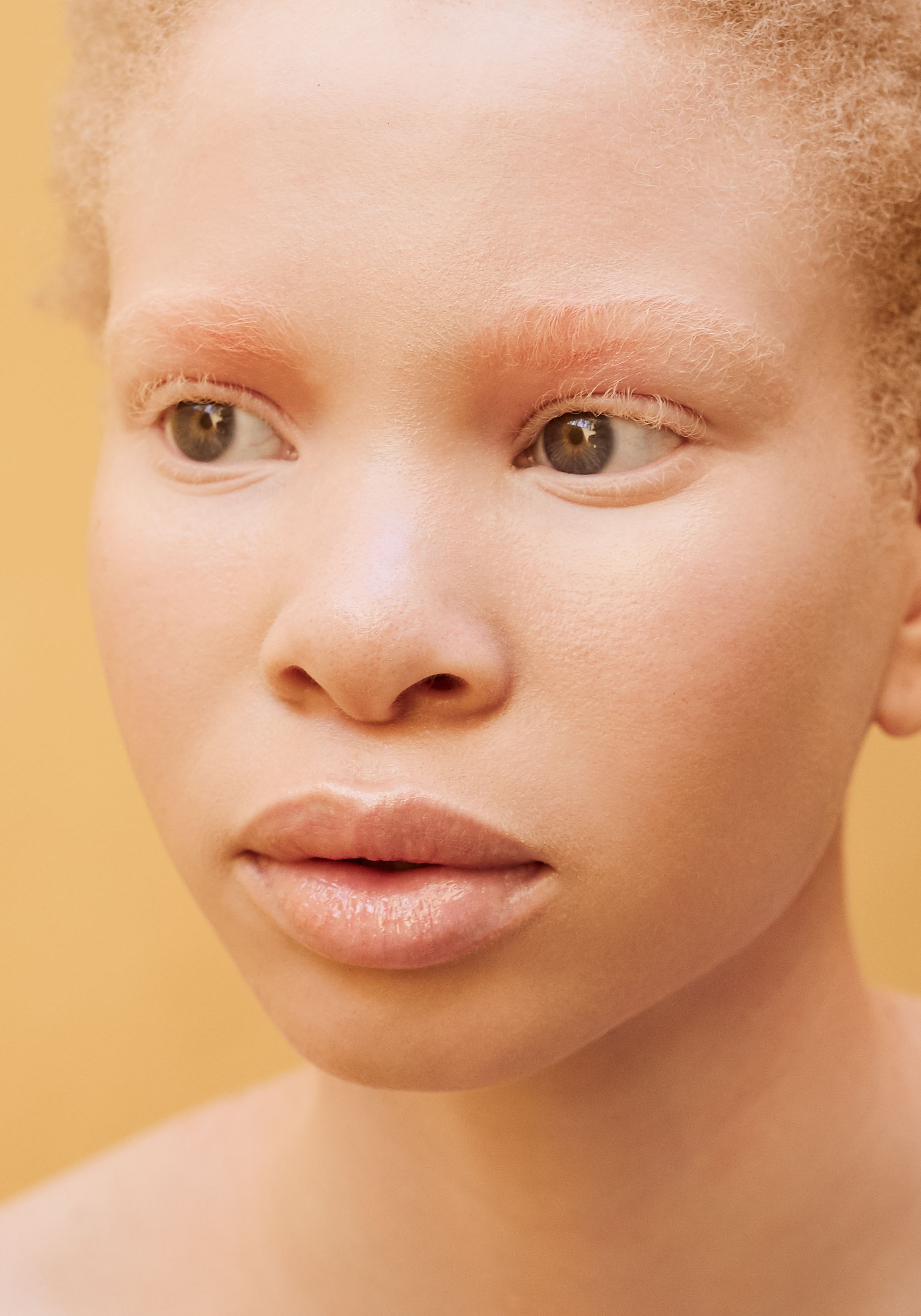 African Albino Beauty Editorial -2.jpg