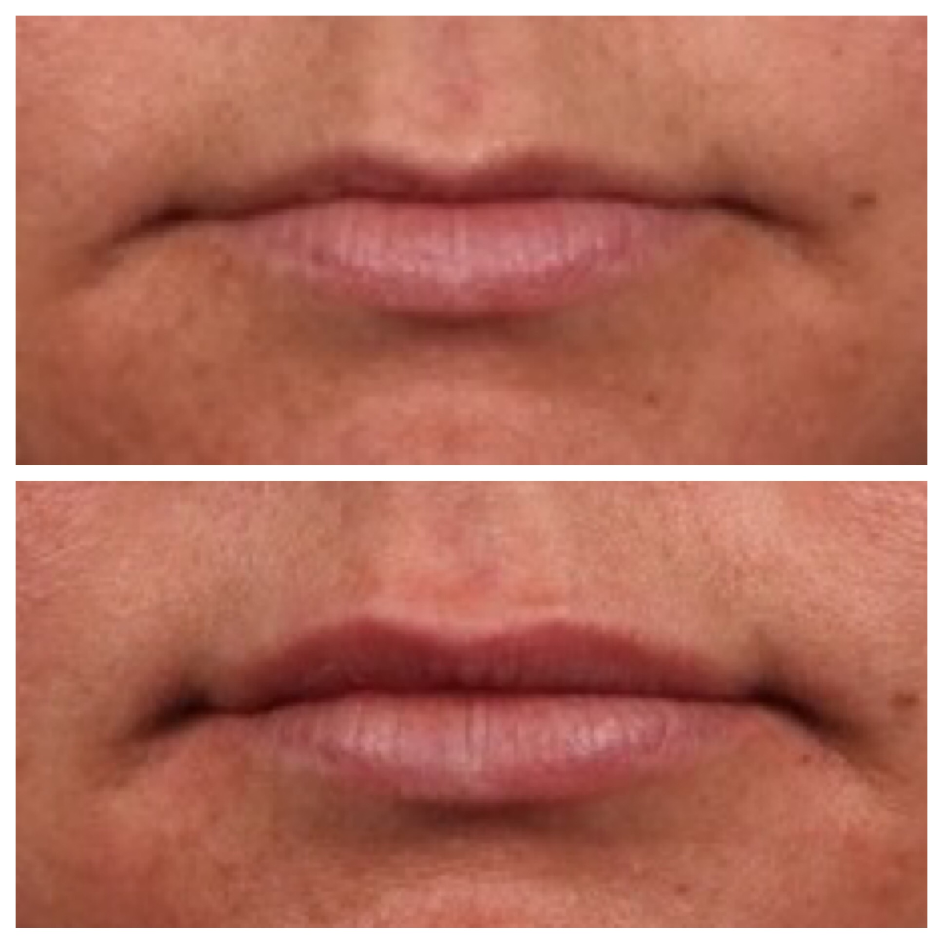 Before (top) and immediately following treatment with Volbella