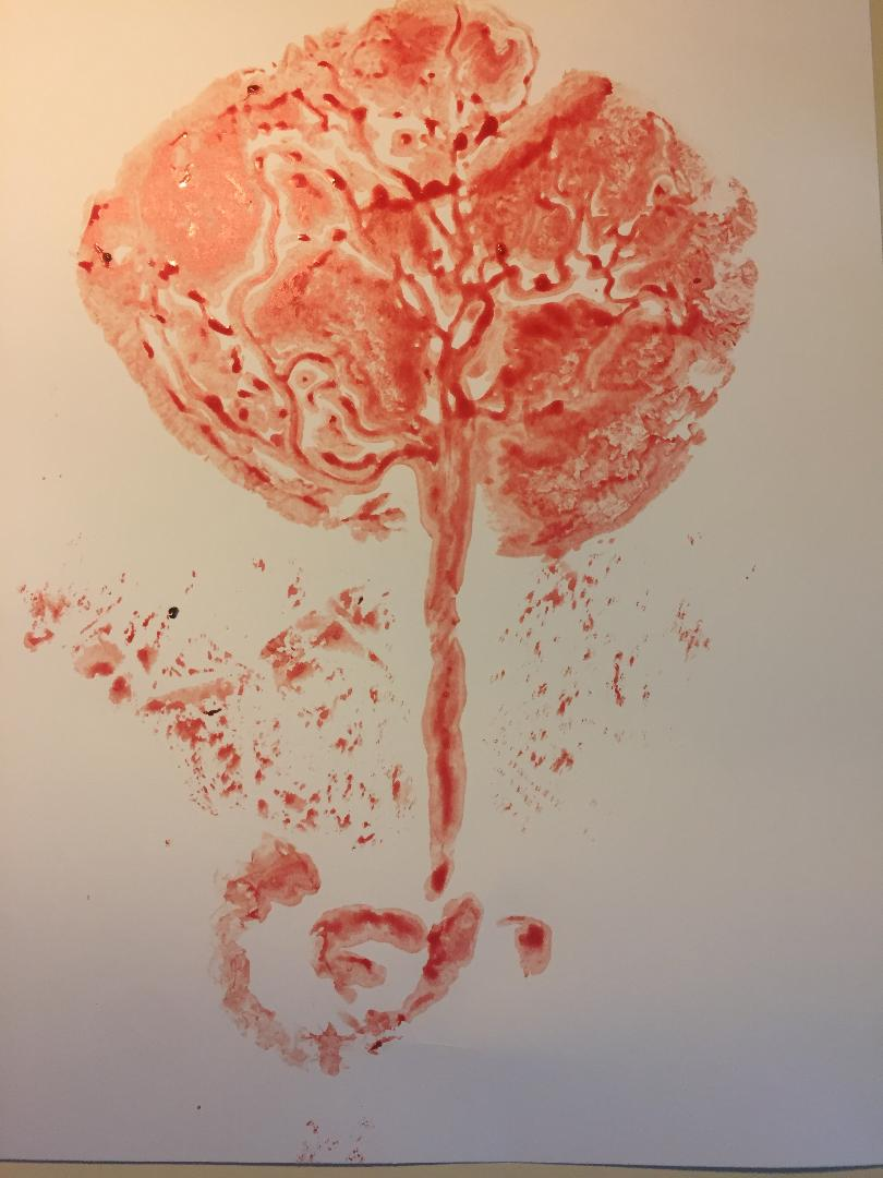 """A placenta print of the baby's side of the placenta. Many consider the veins to look like the """"Tree of Life""""."""