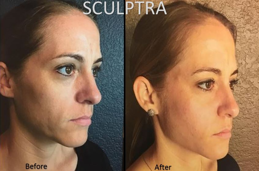 Exclusively offering Sculptra... The secret to youthful looking skin! Sculptra stimulates your skins own natural collagen production to increase overall facial volume.