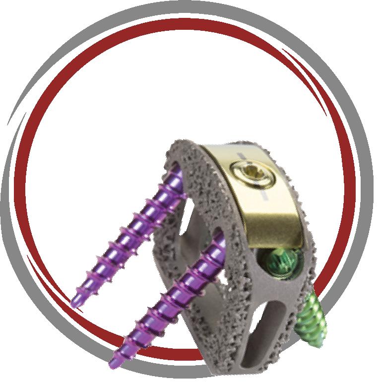TESERA™ SA