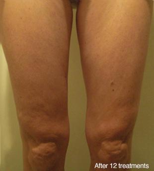 legs after.jpg