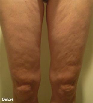 legs bfefore.jpg