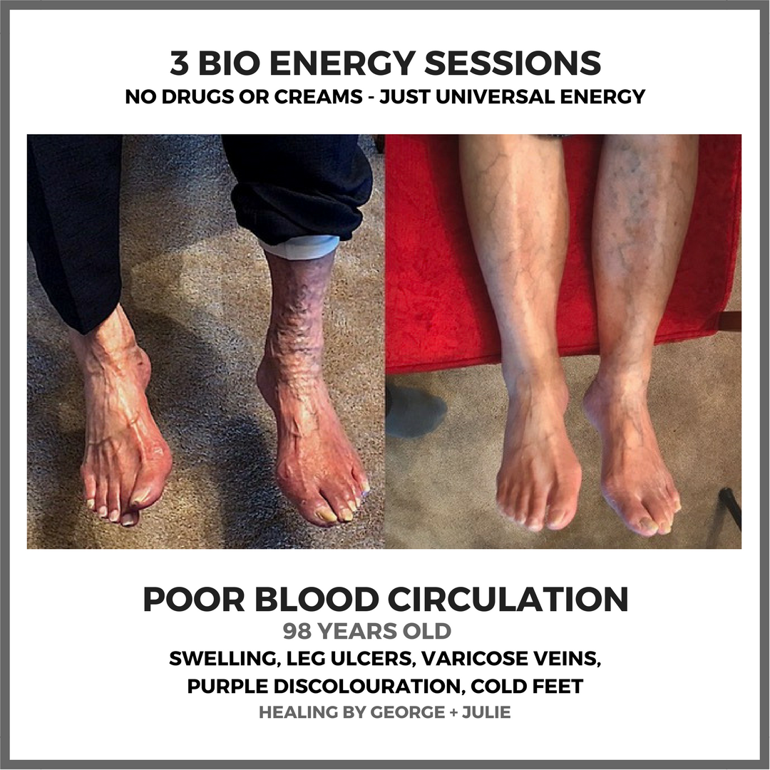 Poor Blood Circulation & Bio Energy Healing Session