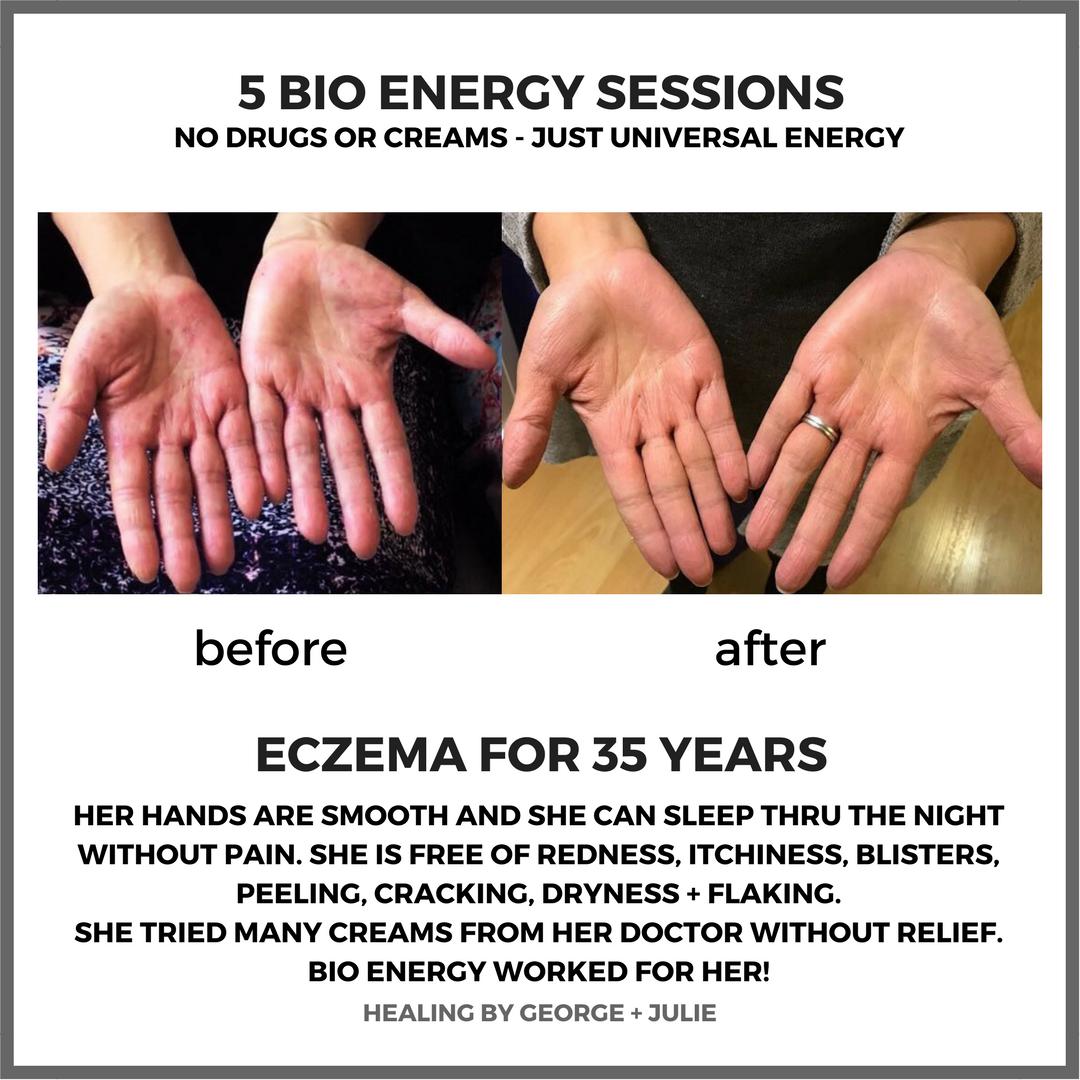 Eczema & Bio Energy Healing Sessions
