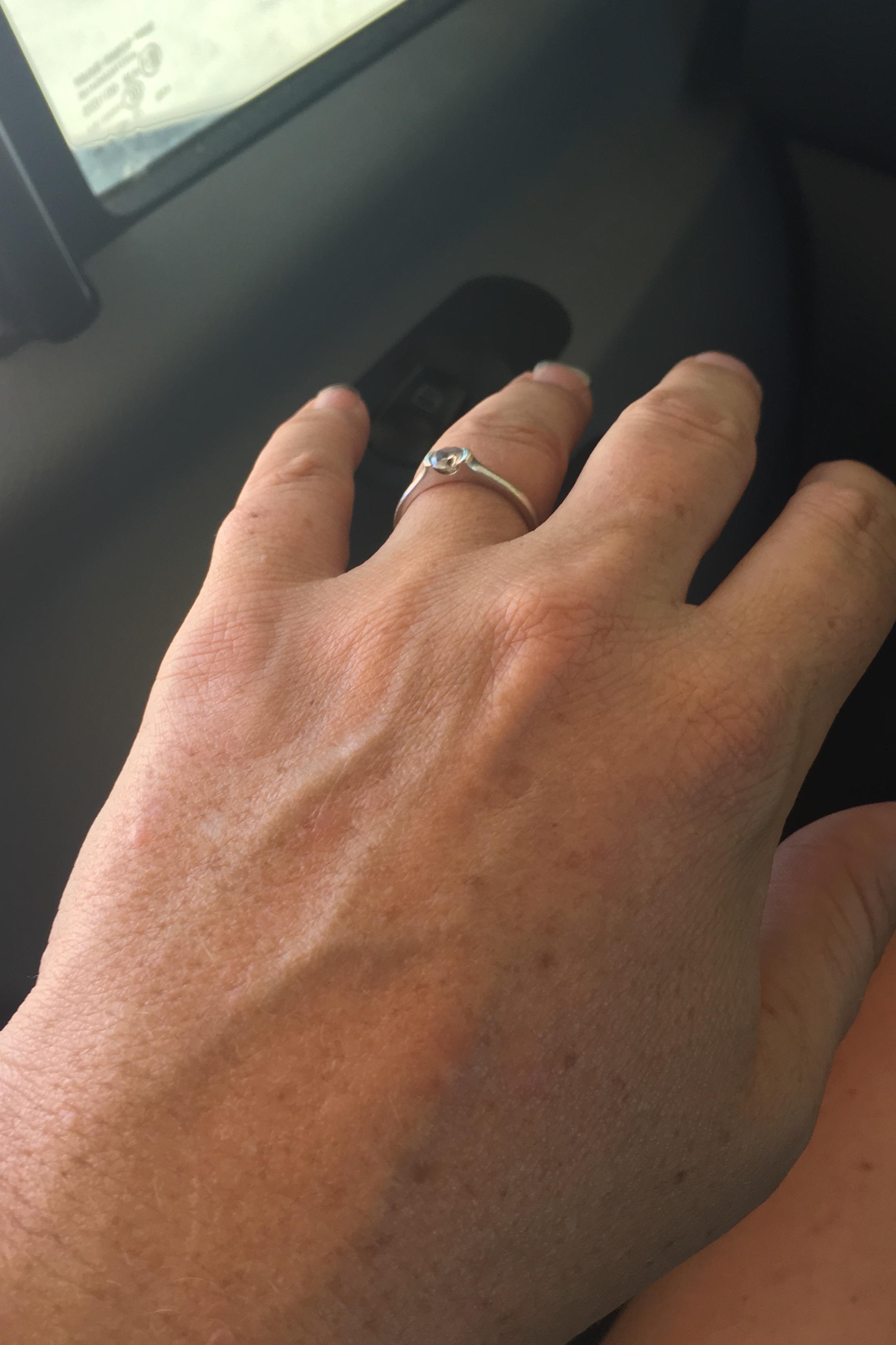 Normal hand