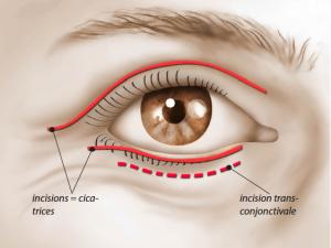 Optez pour la chirurgie de la paupière (appelée Blépharoplastie) pour un regard neuf et éclatant !