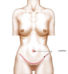 Chirurgie du ventre (plastie abdominale)