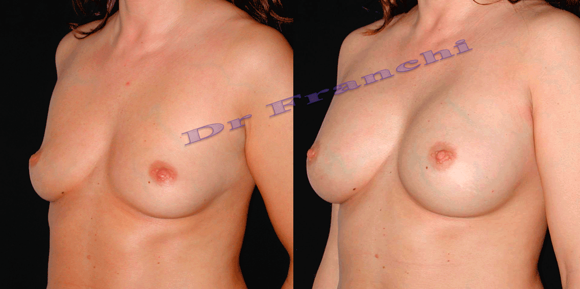 augmentation-mammaire-par-implants-1.png