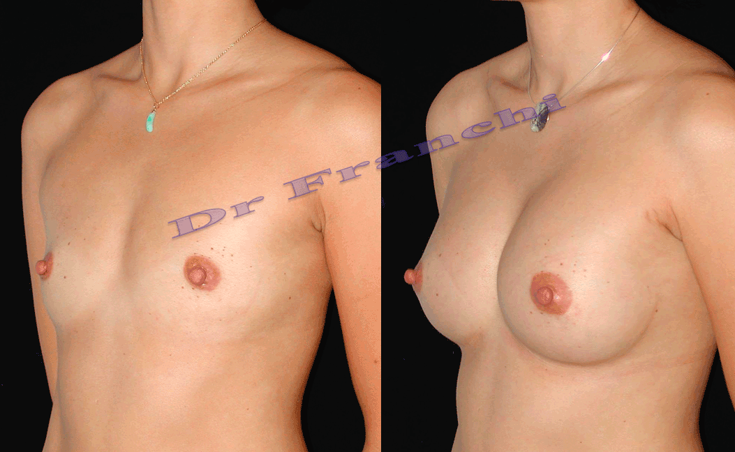 augmentation-mammaire-par-implants-3.png