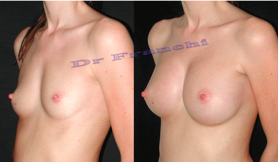 augmentation-mammaire-par-implants-5.png