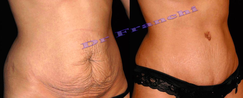 plastie-abdominale-2.png
