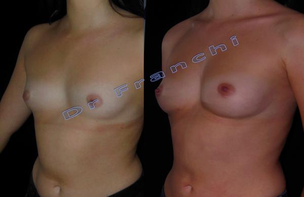 augmentation-mammaire-lipolifting-2.png