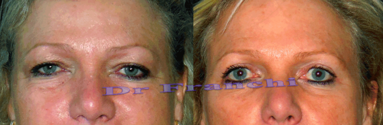 operation-paupieres-tombantes-blepharoplastie.png