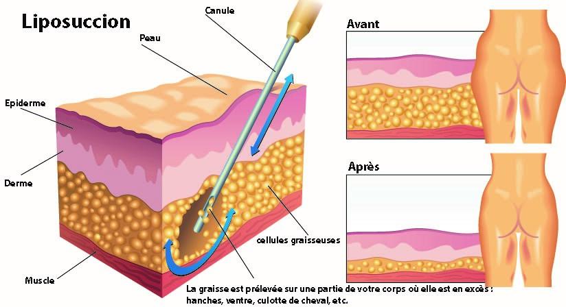liposuccion-avant-apres.jpg
