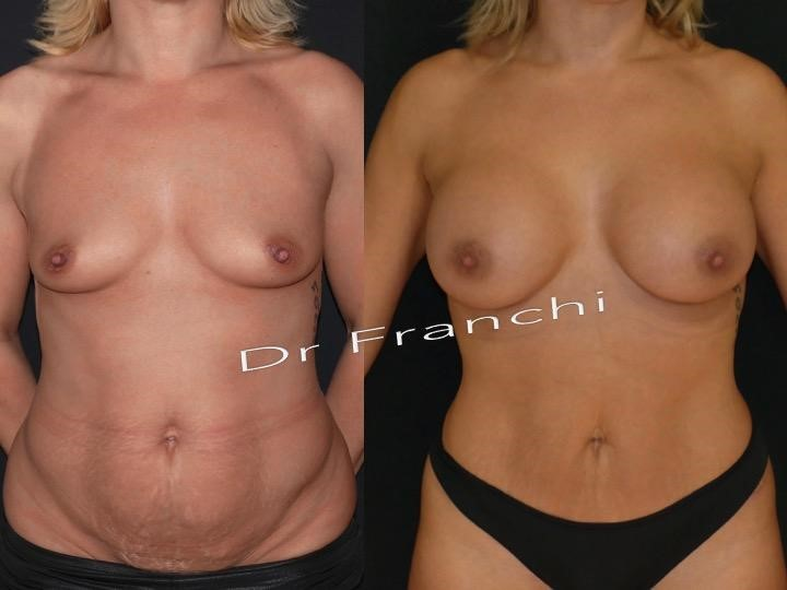 lifting-ventre-augmentation-mammaire.jpg