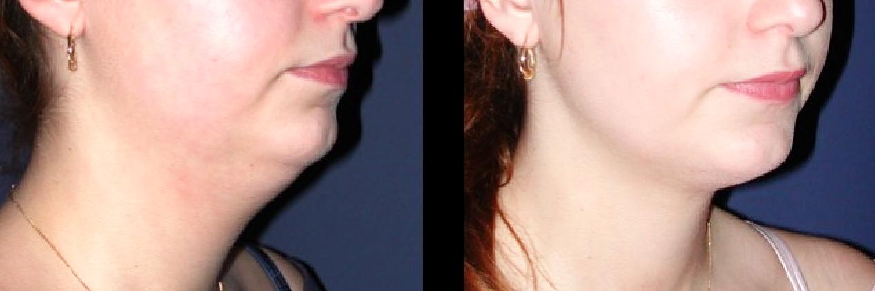 Correction double menton par chirurgie esthétique