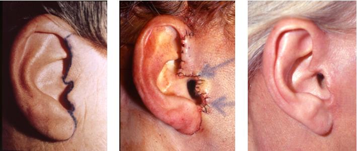 Cicatrice de l'oreille, lifting cervico-facial - Extraites du site du Dr Bon.  http://www.chirurgie-esthetique-bon.fr/lifting