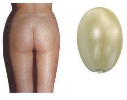liposuccion naturelle et harmonieuse fesses et hanches