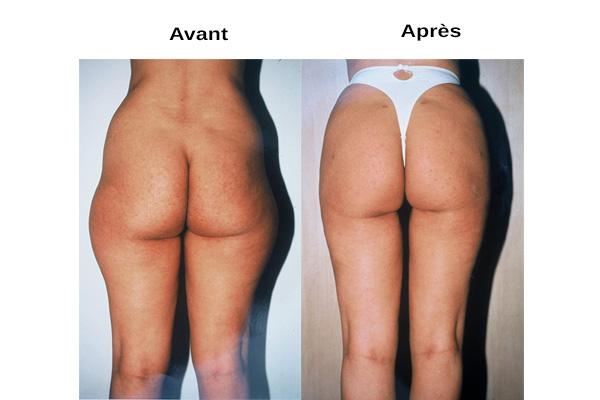 avant / après liposuccion silhouette naturelle
