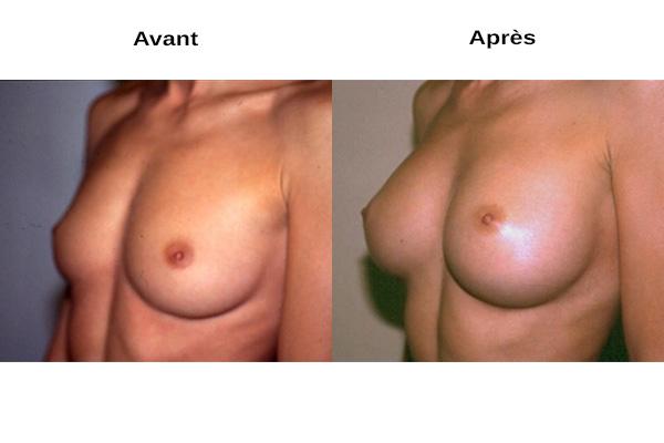 Avant après augmentation naturelle des seins