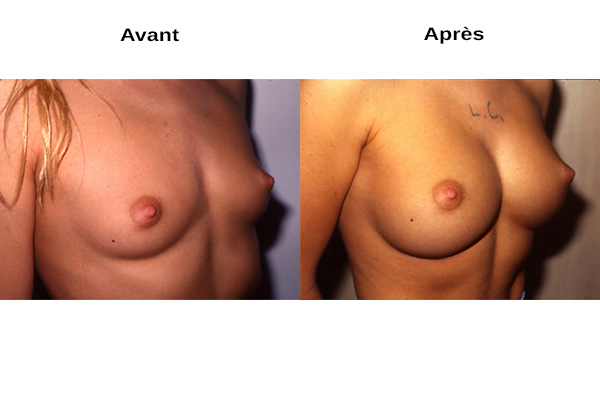 Avant après augmentation mammaire naturelle