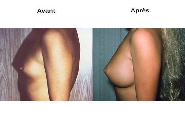 augmentation naturelle des seins