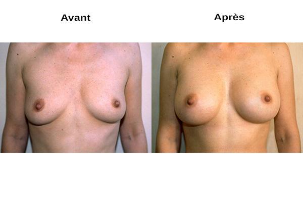 vue de face avant après augmentation mammaire naturelle