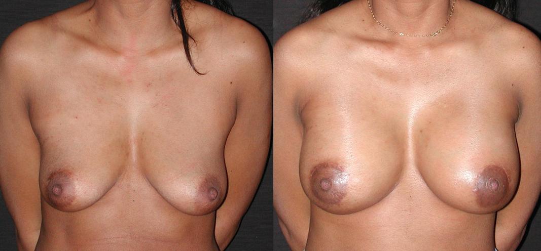 lifting mammaire et pose d'implants avant après