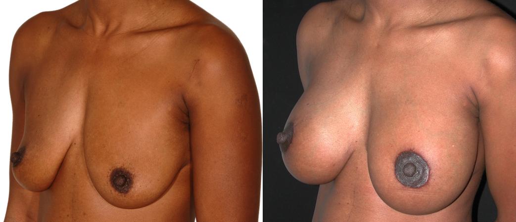 lifting des seins avec implants