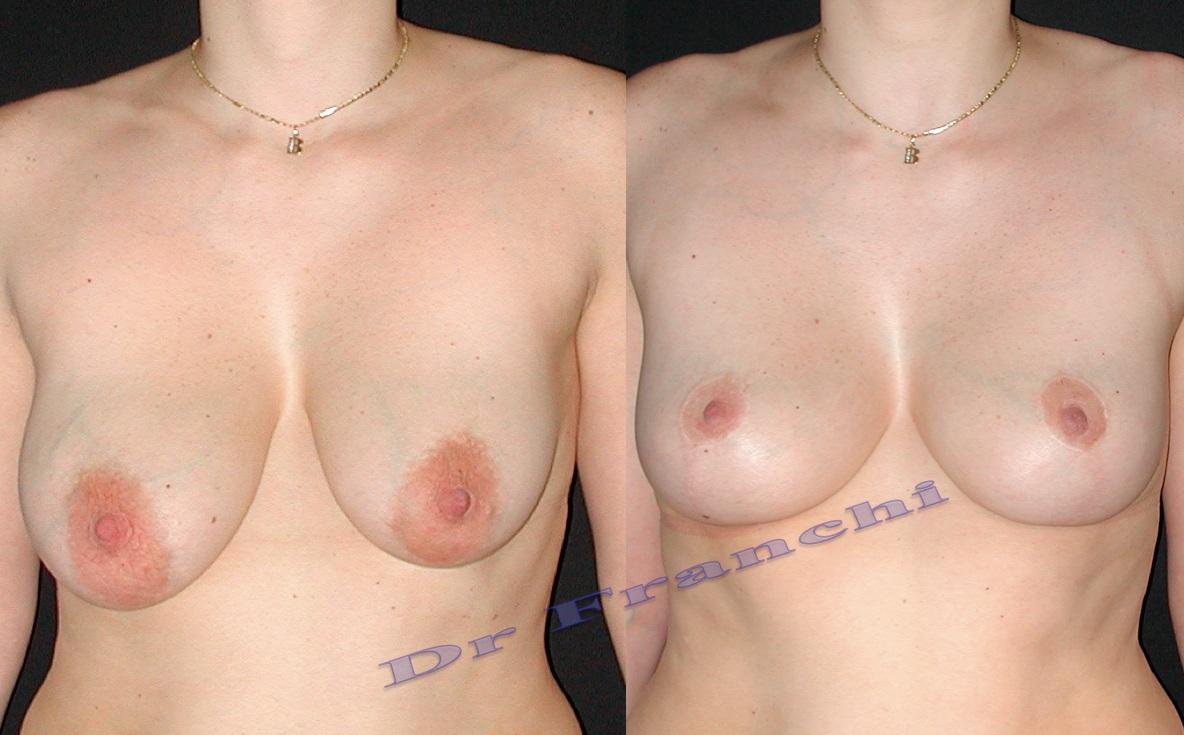 Correction asymétrie et lifting mammaire