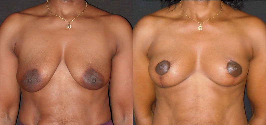 lifting des seins sans implant_NTO2.png