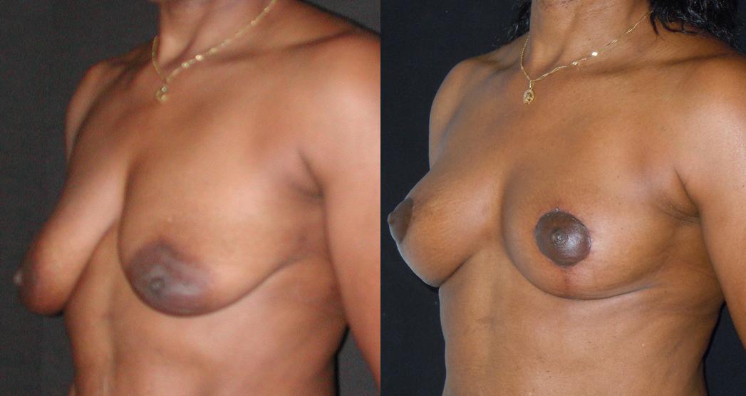 lifting des seins sans implant_NTO1.png