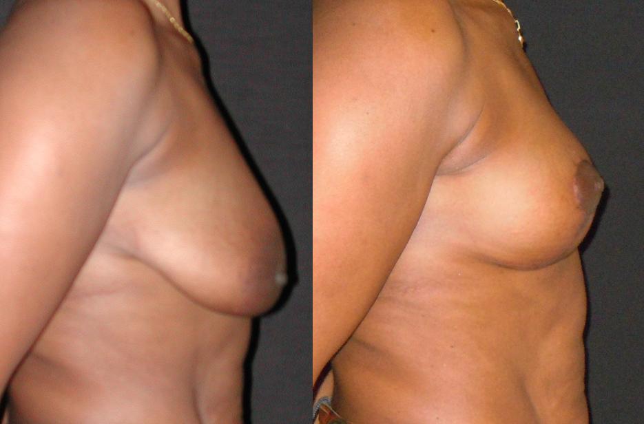 lifting des seins sans implant_NTO3.png