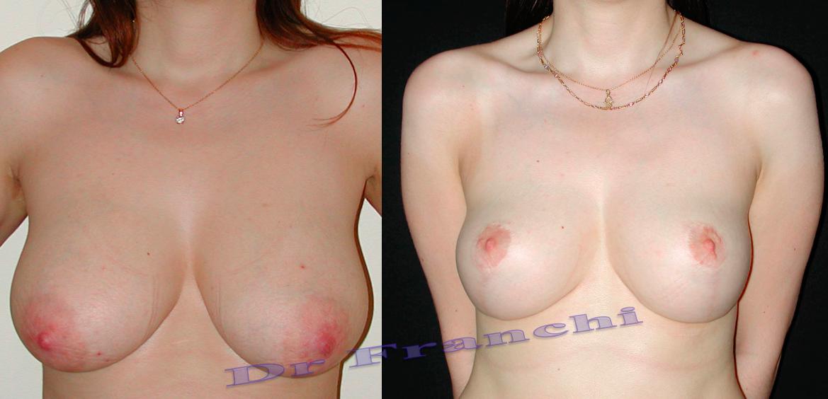 liting mammaire avant après