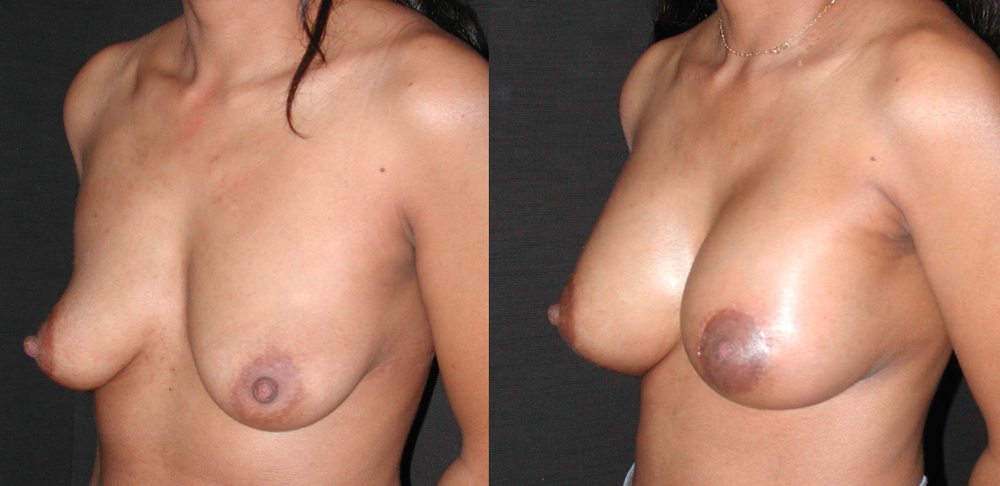Lifting mammaire et pose d'implants avant après vue de trois quart