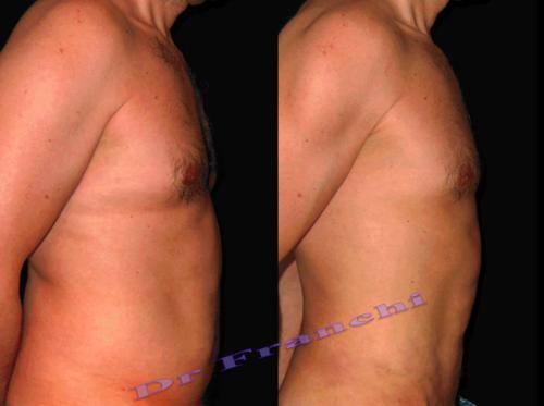 lipoaspiration-du-ventre-de-l'homme-1.png