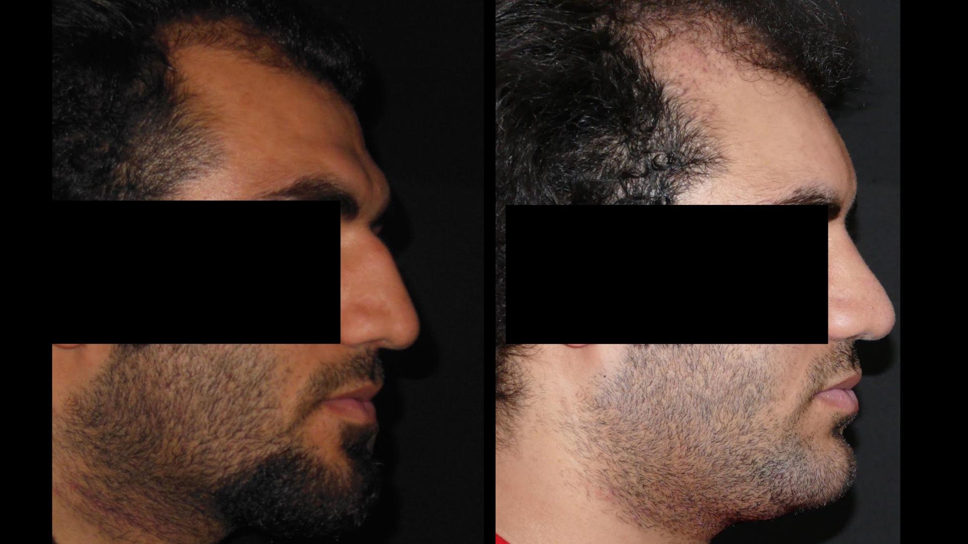 chirurgie-esthetique-visage-bosse-sourcils
