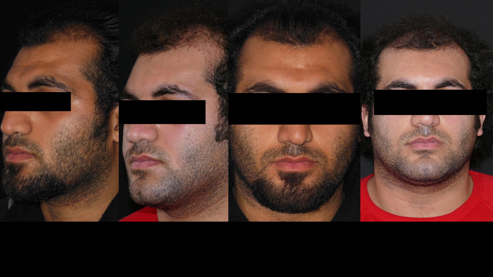 supprimer-bosse-front-sourcils-chirurgie-visage